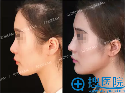 假体+鼻中隔软骨鼻综合修复术后侧面照
