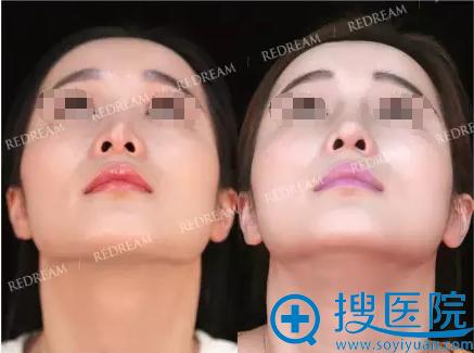 假体置换+自体软骨隆鼻术后鼻底对比