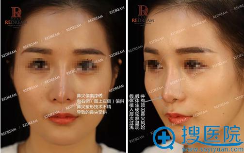 术前假体痕迹明显且明显的鼻尖歪斜