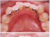 你被歪牙困扰吗?孟建告诉您重庆时光牙齿矫正的优势与特点