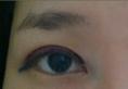 面诊了杭州浙一医院吴慧玲后选择范希玲医生做了双眼皮