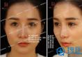 苏州薇琳歪鼻修复案例:假体置换+鼻中隔综合隆鼻让她重现光彩