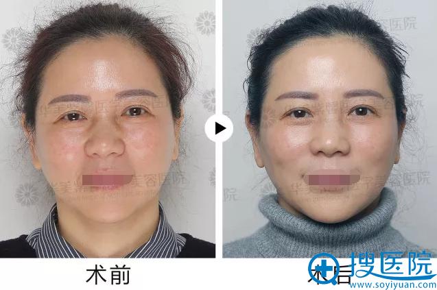 PCC基因疗法·术前术后
