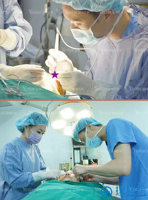 手术过程全程无痛