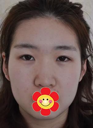 北京嘉韵医疗美容谢惠彬院长为我做面部轮廓吸脂整形手术效果