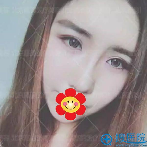 北京嘉韵面部吸脂及轮廓整形案例