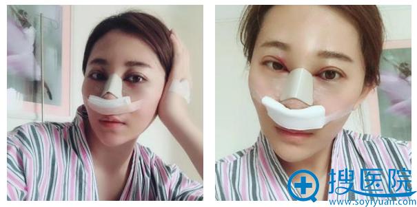 房志强医生做的鼻子术后4天效果