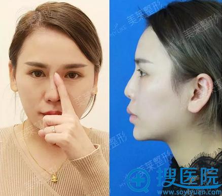 假体隆鼻失败修复前的样子