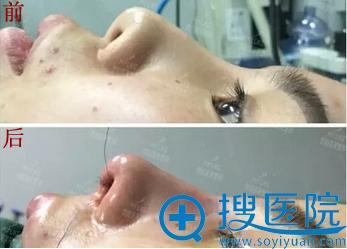 鼻修复手术即刻的对比效果