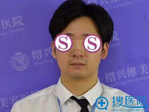 男友在绍兴维美做鼻综合第3天