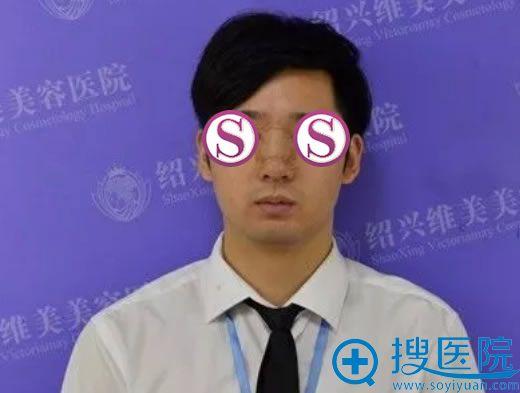 选择绍兴维美隆鼻手术第7天