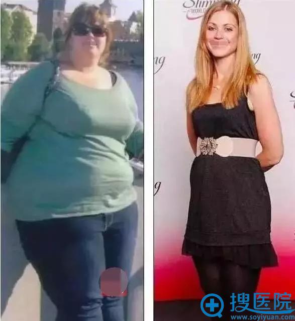 Harriet Jenkins减肥前后对比