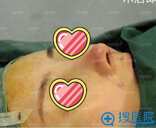 鼻修复手术完成即刻效果图