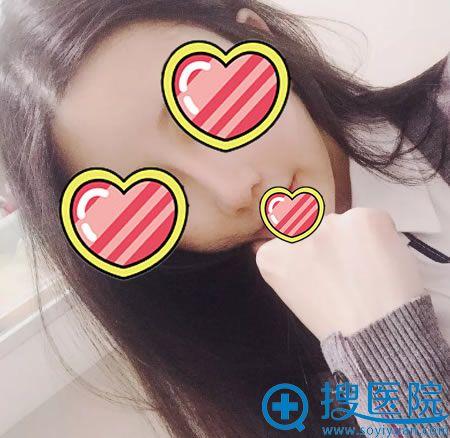 北京柏丽李劲良线雕隆鼻修复案例