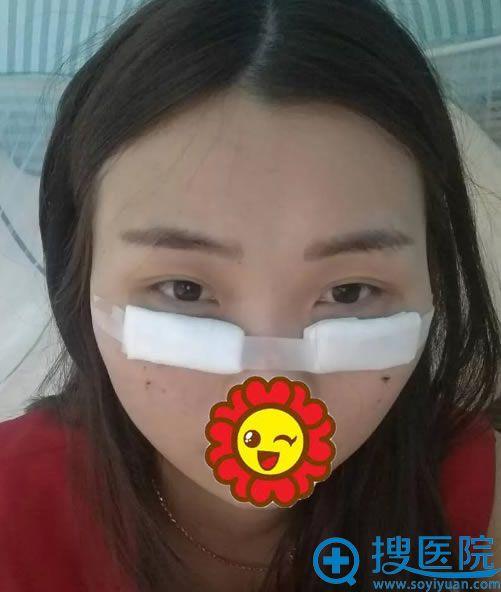 美诗沁祛眼袋手术当天照片