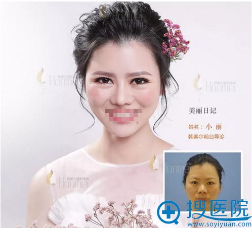 深圳韩美尔双眼皮术后对比照片