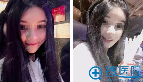深圳丽港丽格面部脂肪填充术后三十天