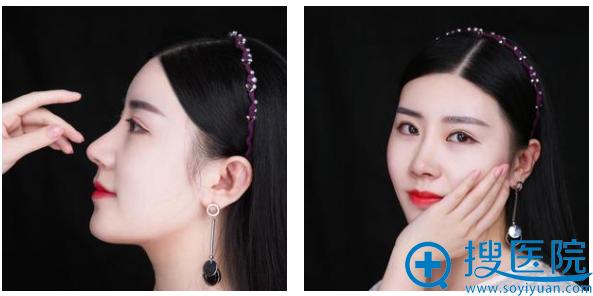 武汉美莱徐建国医生鼻综合隆鼻2个月写真