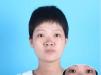 免费祛斑靠谱吗?郑州集美激光祛斑+中西医调理一次效果对比