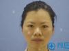 深圳韩美尔医疗美容医院前台导诊为自家双眼皮术后效果代言