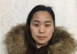 面部脂肪填充90天准备到桂林熊名田复诊,术后效果先睹为快
