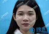 深圳丽港丽格彭静自体脂肪填充全面部 打造精致小V脸