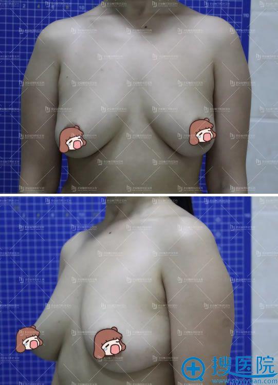 产后胸部下垂的照片