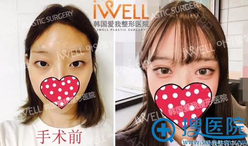 韩国iwell整形双眼皮术后效果对比照