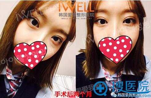 韩国爱我整形美容医院双眼皮术后2个月效果