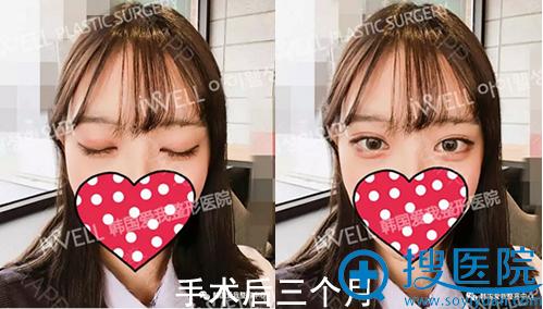 韩国爱我自然粘连双眼皮术后3个月恢复照