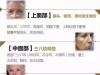 除皱也有好方法?3月25日上海九院吴晓军亲诊安徽韩美为您揭密