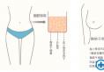 假体隆胸和自体隆胸哪个适合我?合肥华美丰胸方式小胸轻松变胸