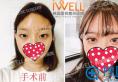 韩国iwell爱我整形美容医院自然粘连双眼皮术后效果,你羡慕吗