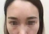 郑州芳艺整形曾康线雕提拉脸颊苹果肌+线雕隆鼻术后效果展示