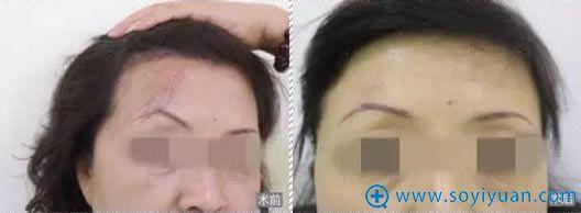 贵阳利美康手术祛疤痕案例效果