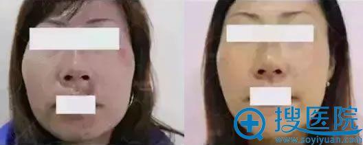 利美康离子束介入法祛疤痕案例效果