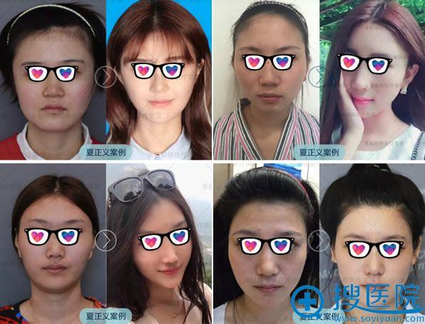 北京米扬丽格夏正义自体脂肪填充案例