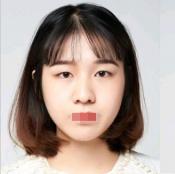 郑州双眼皮哪里做的好?大学生在郑大二附院做的切开双眼皮案例