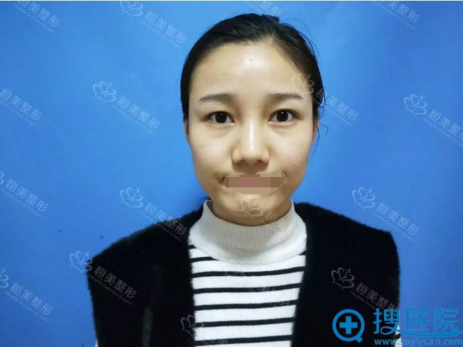 鼻整形术前相貌平平