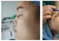 瞧杭州格莱美张龙医生给我做的鼻综合隆鼻子案例效果好看吗