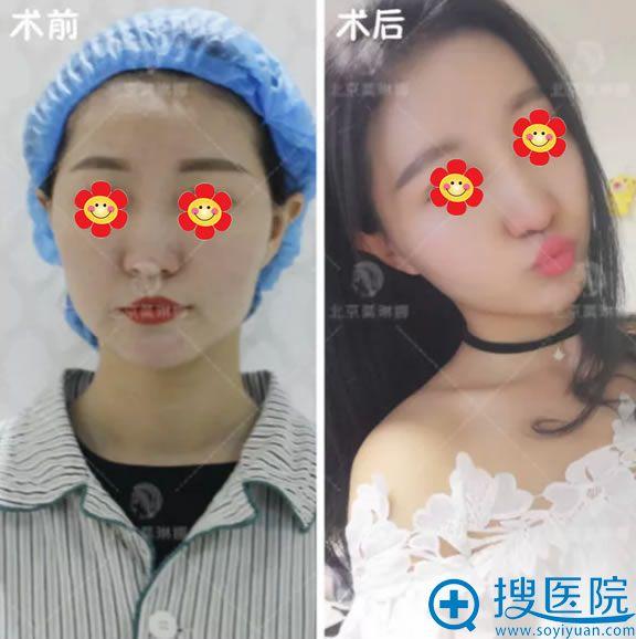 北京莫琳娜脂肪填充案例前后效果对比图