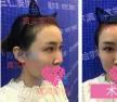 选择哈尔滨欧兰仁美李功哲达拉斯隆鼻术真是太对了,术后很美哦