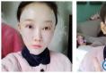 个人觉得上海首尔丽格金柱做的自体脂肪填充面部和双眼皮很好看