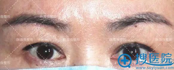50岁的我做双眼皮手术前照片