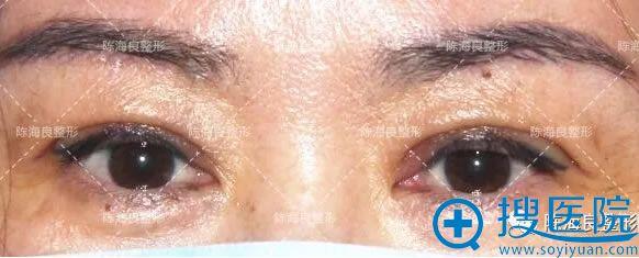 北京一美陈海良双眼皮案例7天效果