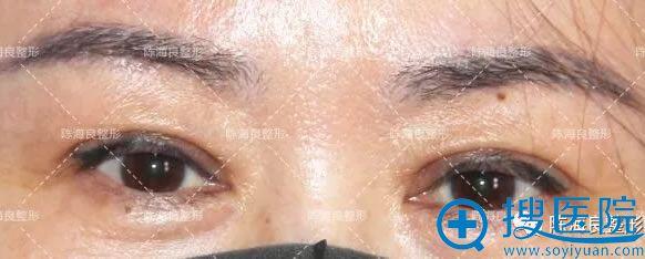 双眼皮手术20天到一美复查照片