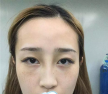 面部干瘪苍老在深圳南西子做脂肪填充全面部手术后变成元气少女