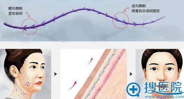 韩国原辰PPDO线雕提升原理图