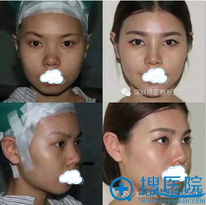 鼻综合+取颊脂垫+丰下巴术后对比照片