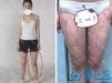 重庆华美张梅大腿吸脂抽出2000ml脂肪 大腿腿围从56变51